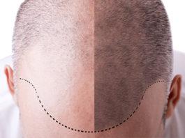 Hair plantation economy in Turkey has exceeded 1.5 billion dollars.